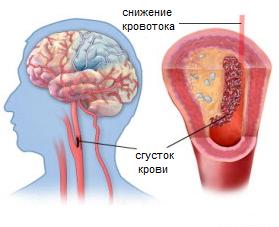 причины инсульта, симптомы инсульта, последствия инсульта, ишемический инсульт, первые признаки инсульта, лечение инсульта, лечение последствий инсульта, инсульт мозга, реабилитация после инсульта, восстановление после инсульта
